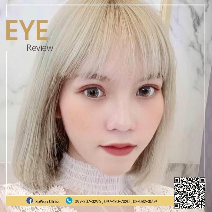 ตาสองชั้น sowon clinic
