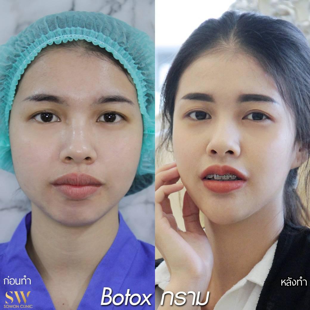 Botoxกราม รีวิว