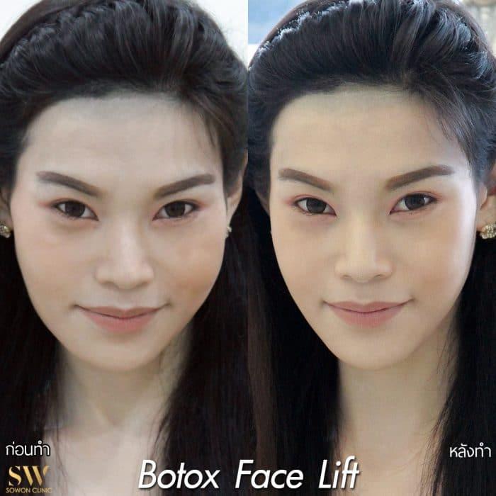 Botox Facelift sowon