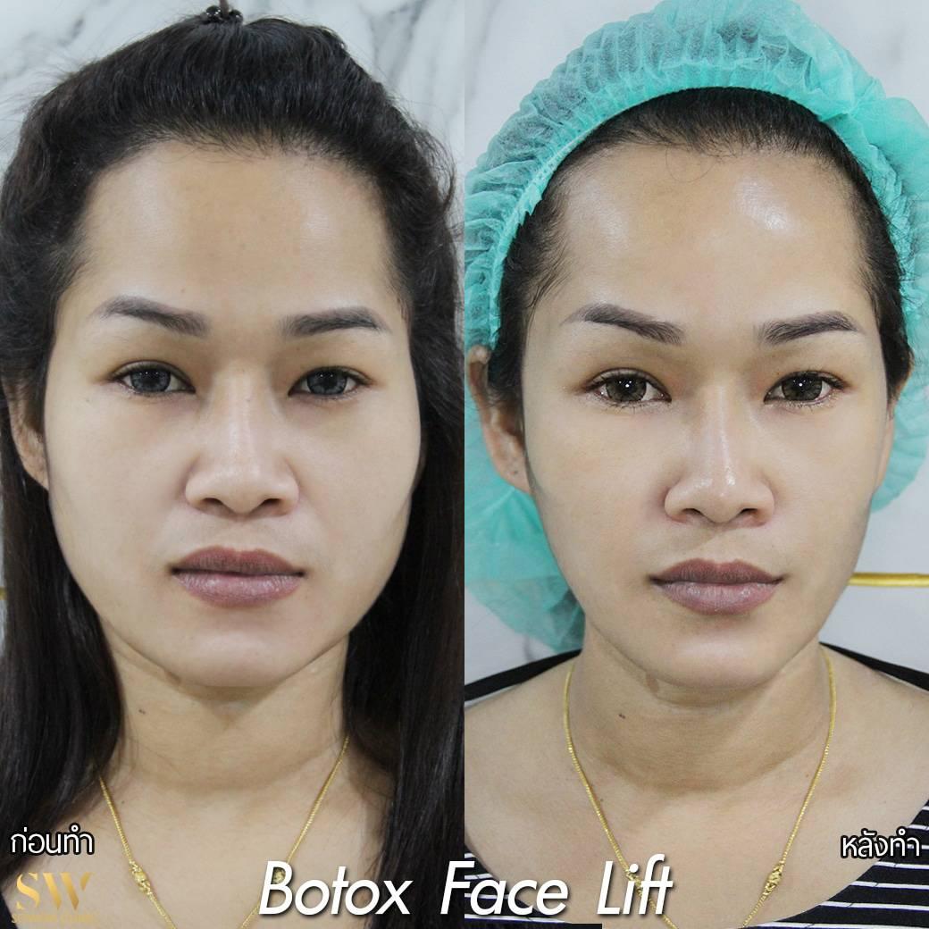 Botox Facelift โซวอน