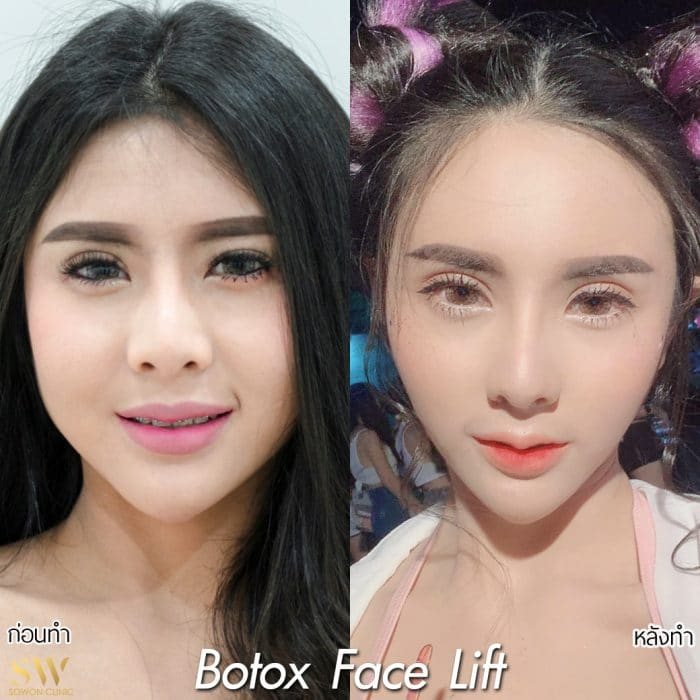 BotoxFacelift