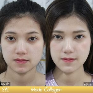 MADE COLLAGEN