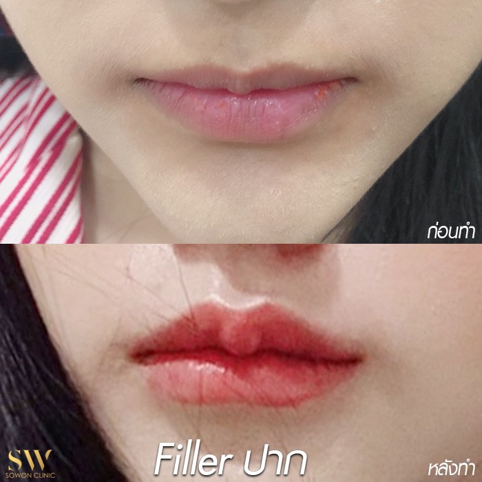 fillerปาก