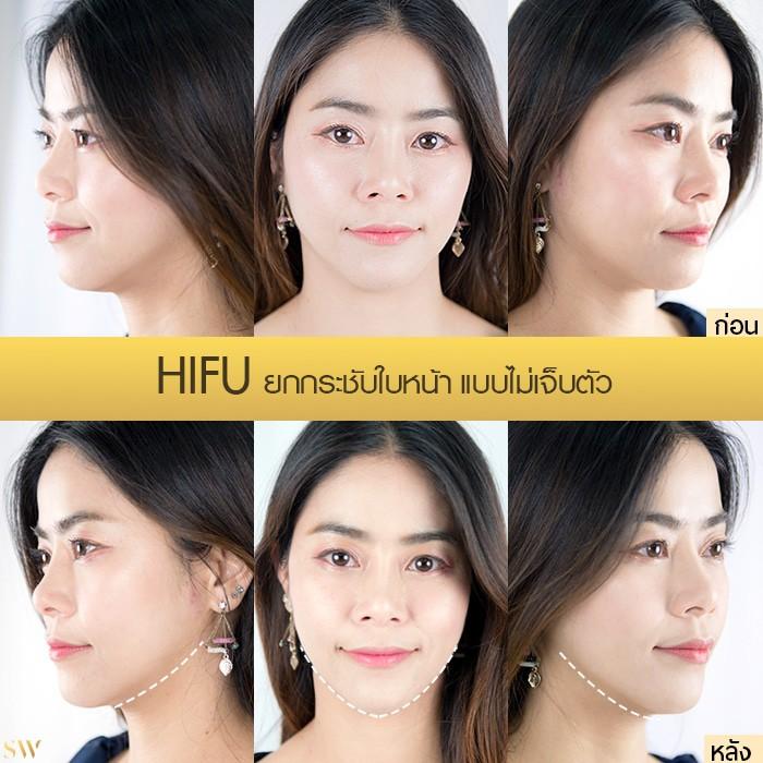 HIFU คุณปุ่น gold