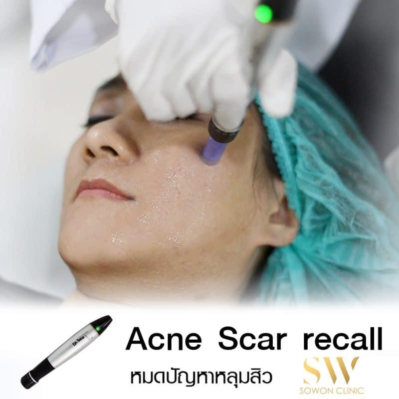 Acne Scar Recall รักษาหลุมสิว