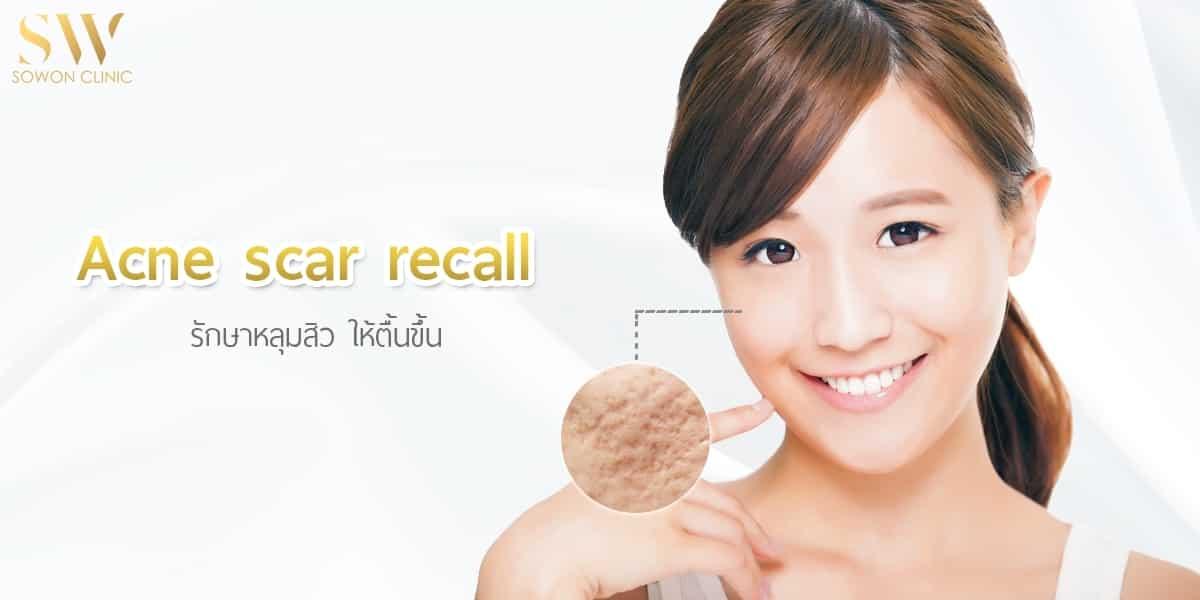 acne scar recall