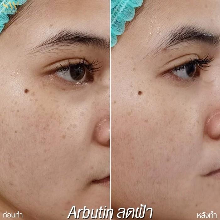 arbutin ลดฝ้ากระ (1)