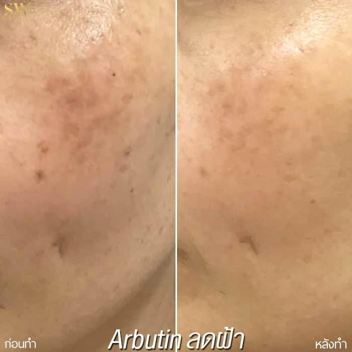arbutin ลดฝ้ากระ sowon clinic