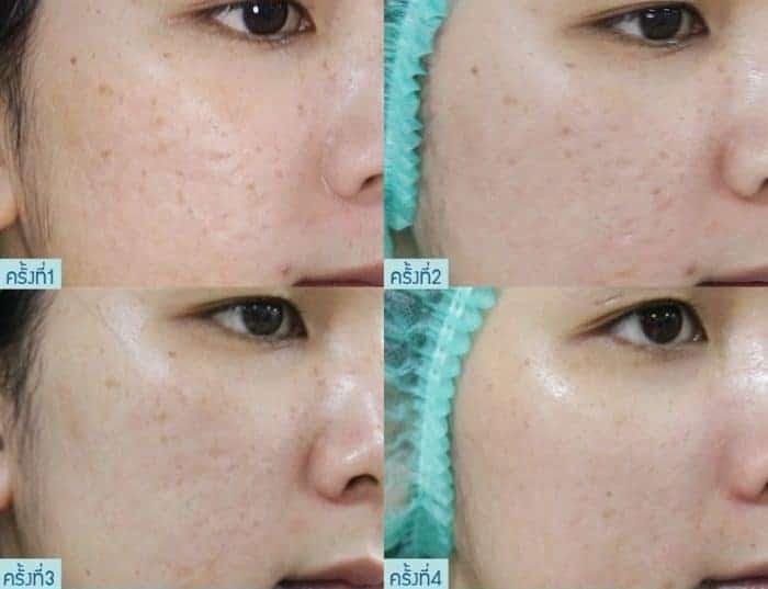 filorga + Acne Scar Recall
