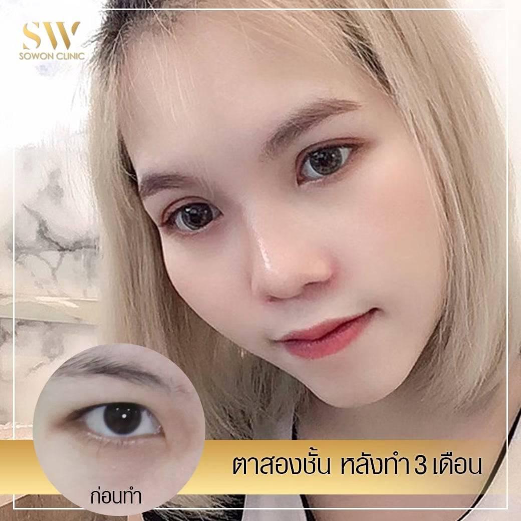 ตาสองชั้น โซวอนคลินิก