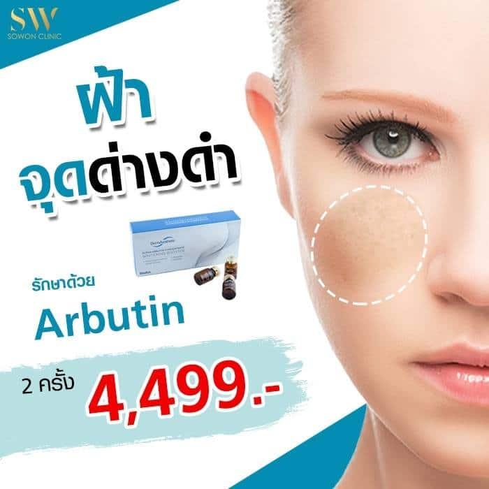 โปรโมชั่น Abutin