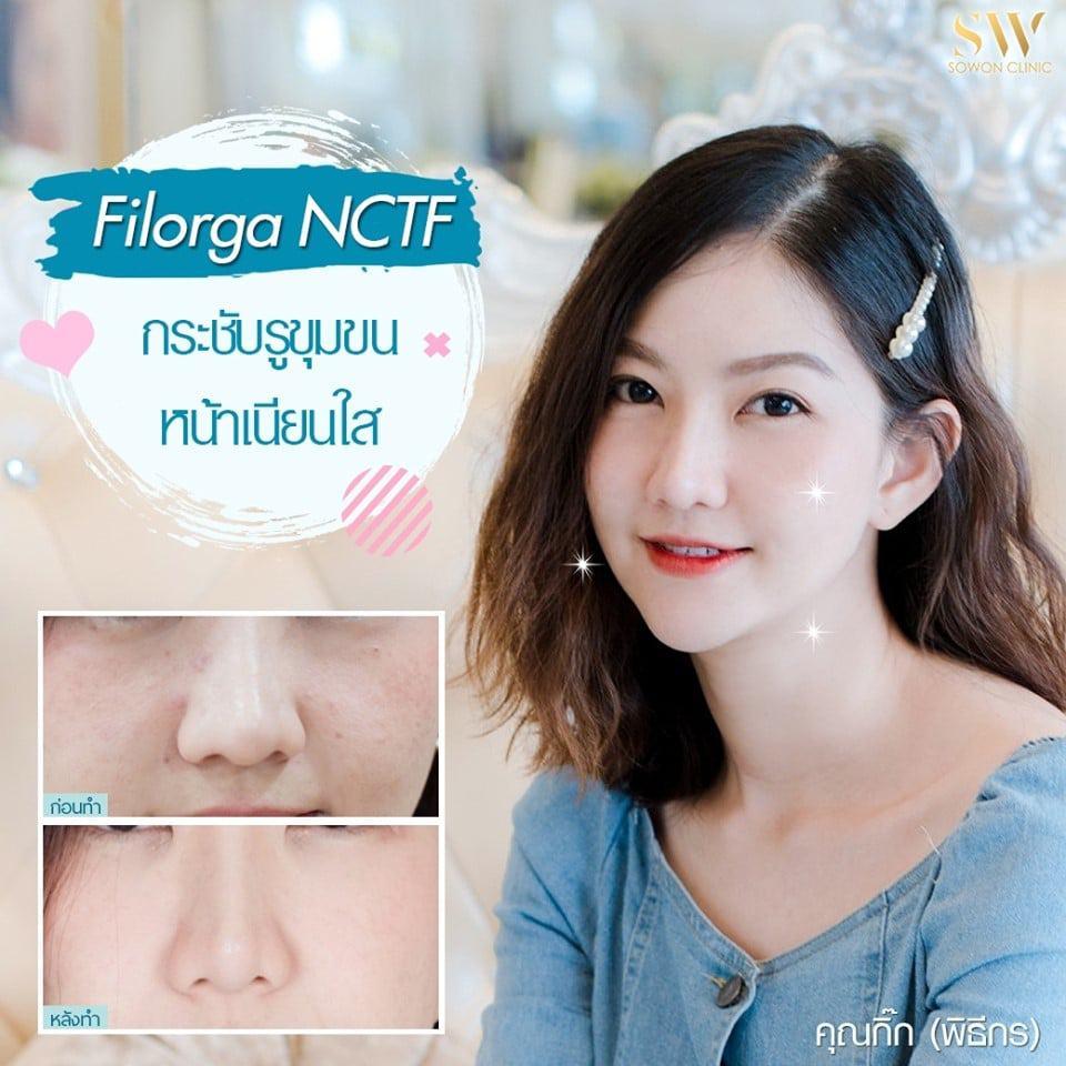 โปรโมชั่น Filorga NCTF เติมเต็มผิวเรียบเนียน ฉ่ำวาว