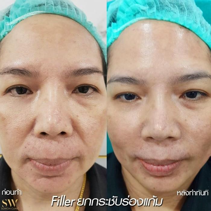ฟิลเลอร์ร่องแก้ม Sowon Clinic (1)