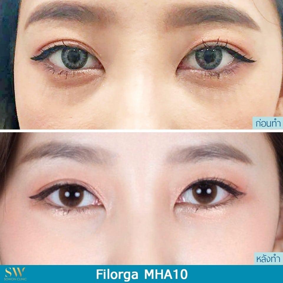 ลดใต้ตาดำ filorga mha10