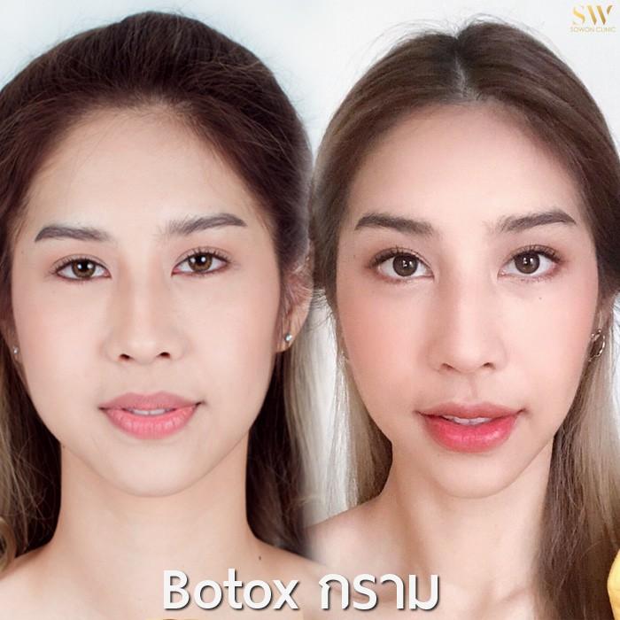 botox ลดกราม