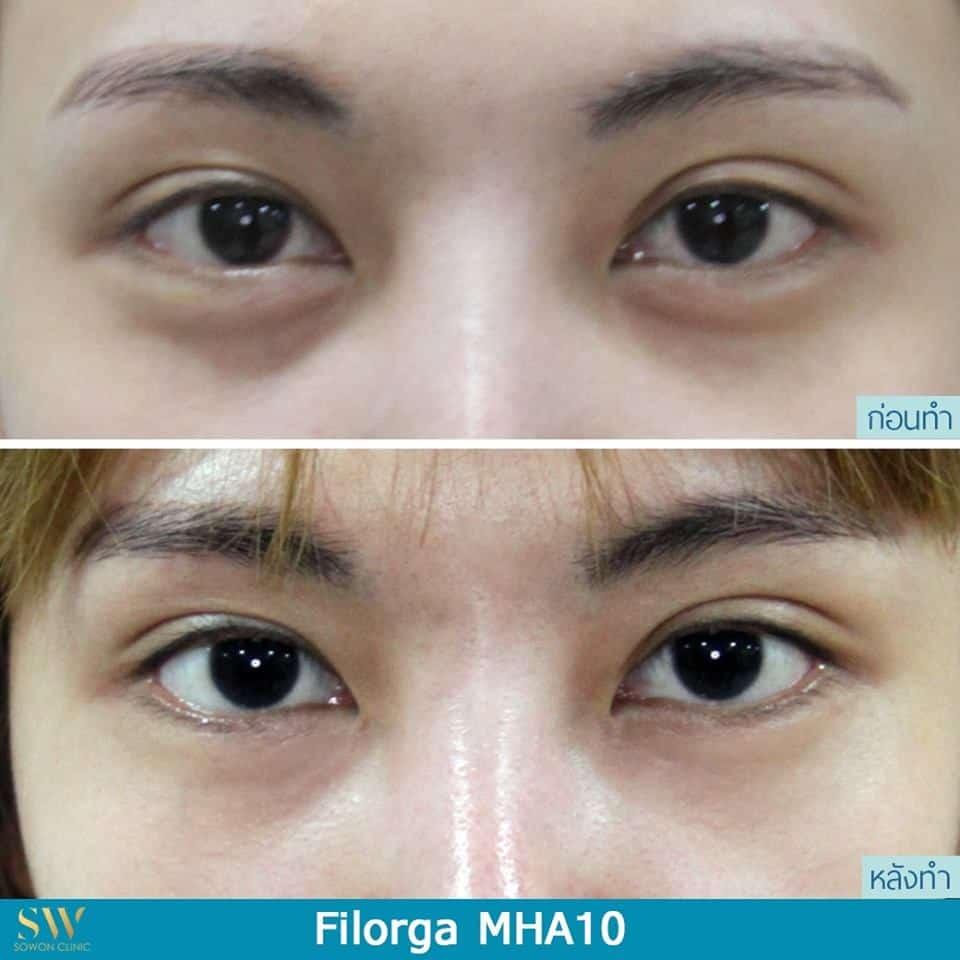 รีวิวหลังฉีด Filorga MHA10 ลดใต้ตาดำ