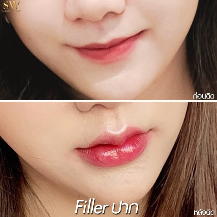 ฟิลเลอร์ปาก เน้นปาก