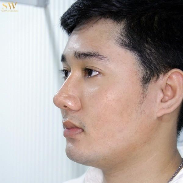 เสริมจมูก ผู้ชาย sowon