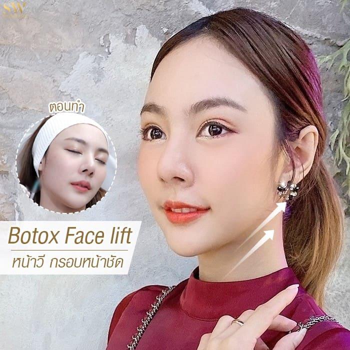 ฉีดโบท็อกซ์ botox face lift