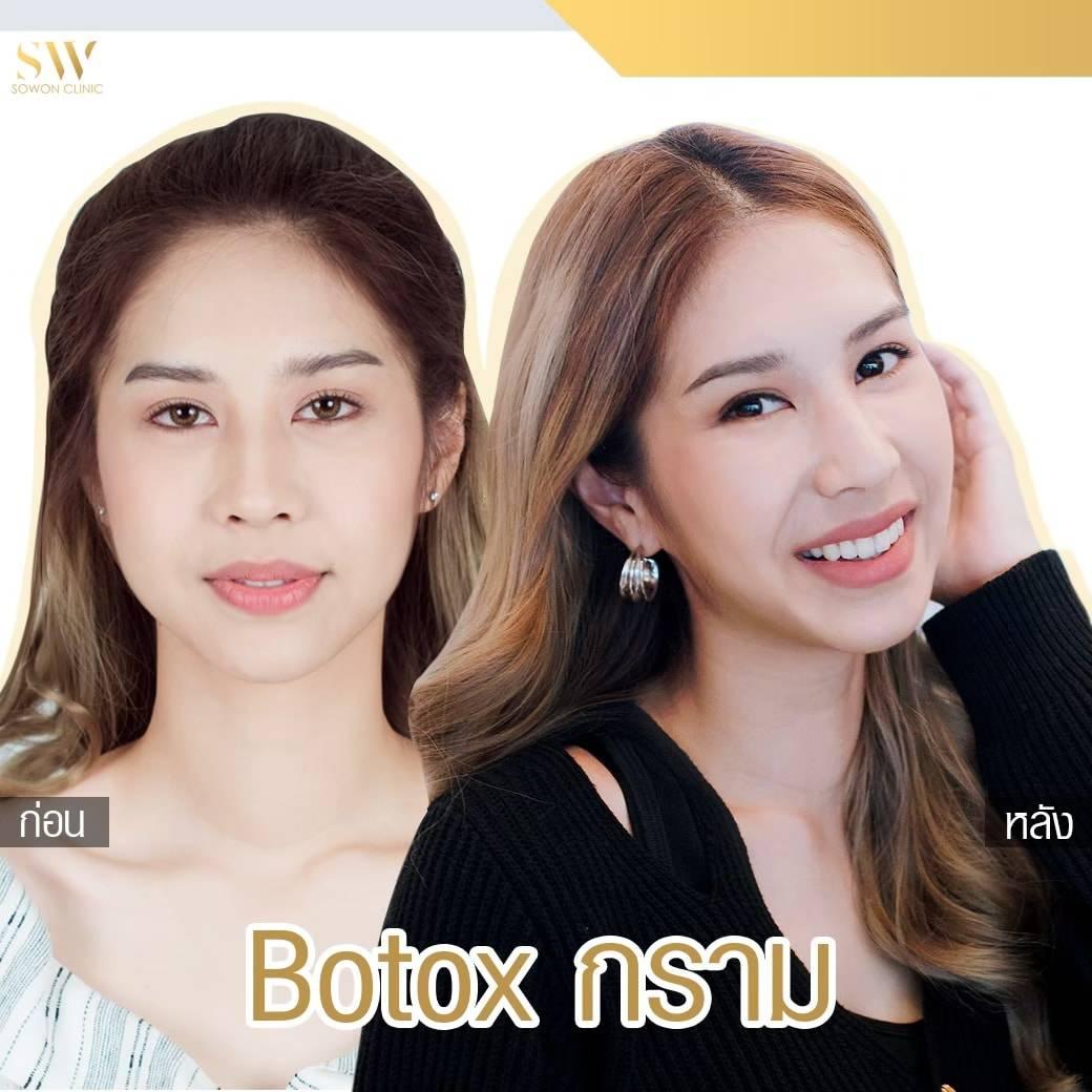 Review Botox โบท็อกซ์ลดกราม