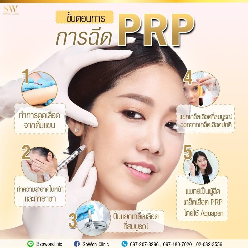 ขั้นตอนการทำ PRP sowon clinic