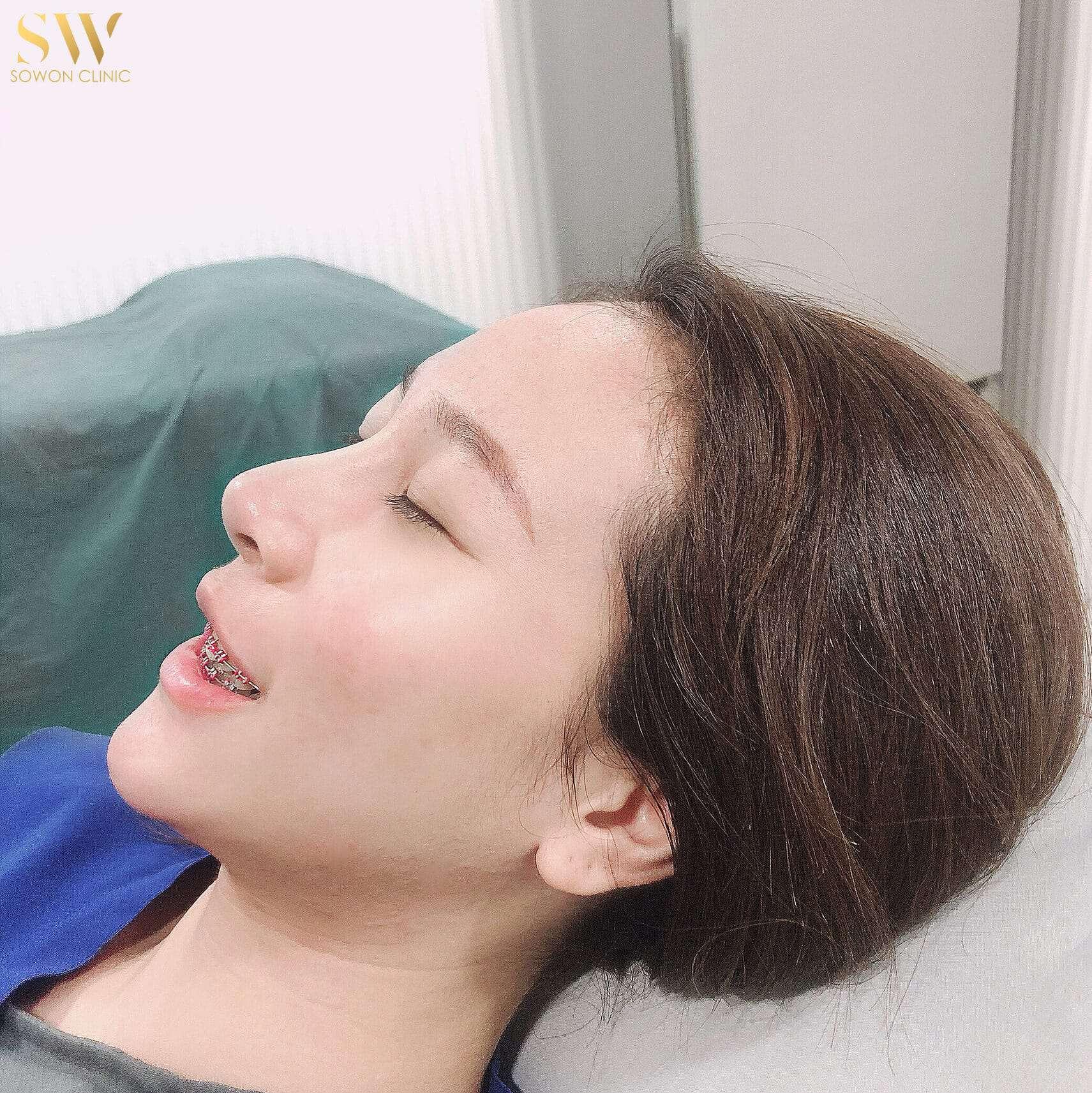 ทำจมูก ทรงไหนดี Sowon Clinic