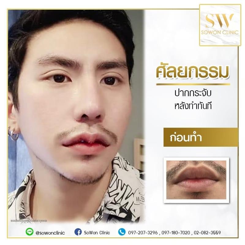 ปาก ผู้ชาย