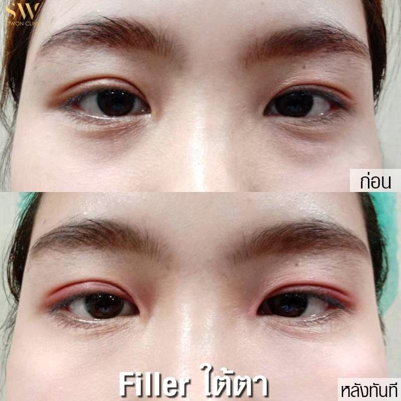 Filler ใต้ตา3ตัว ตัว3