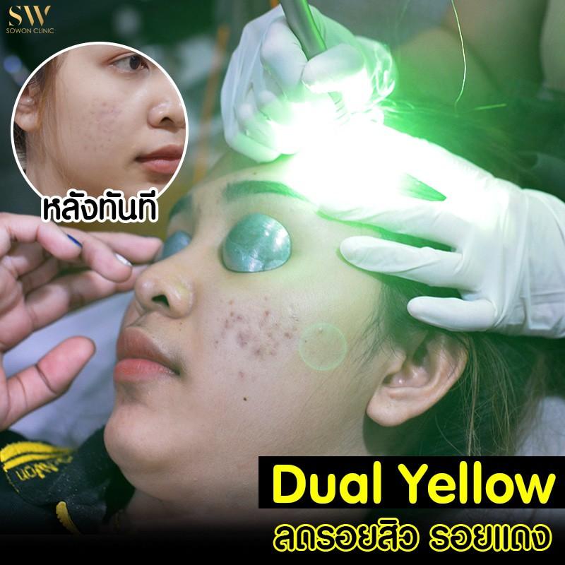DualYello