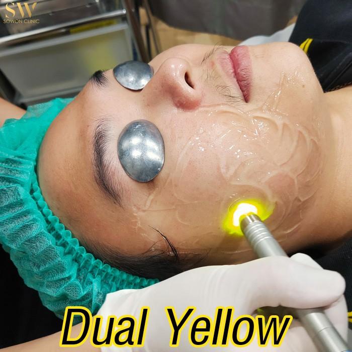 DualYellow