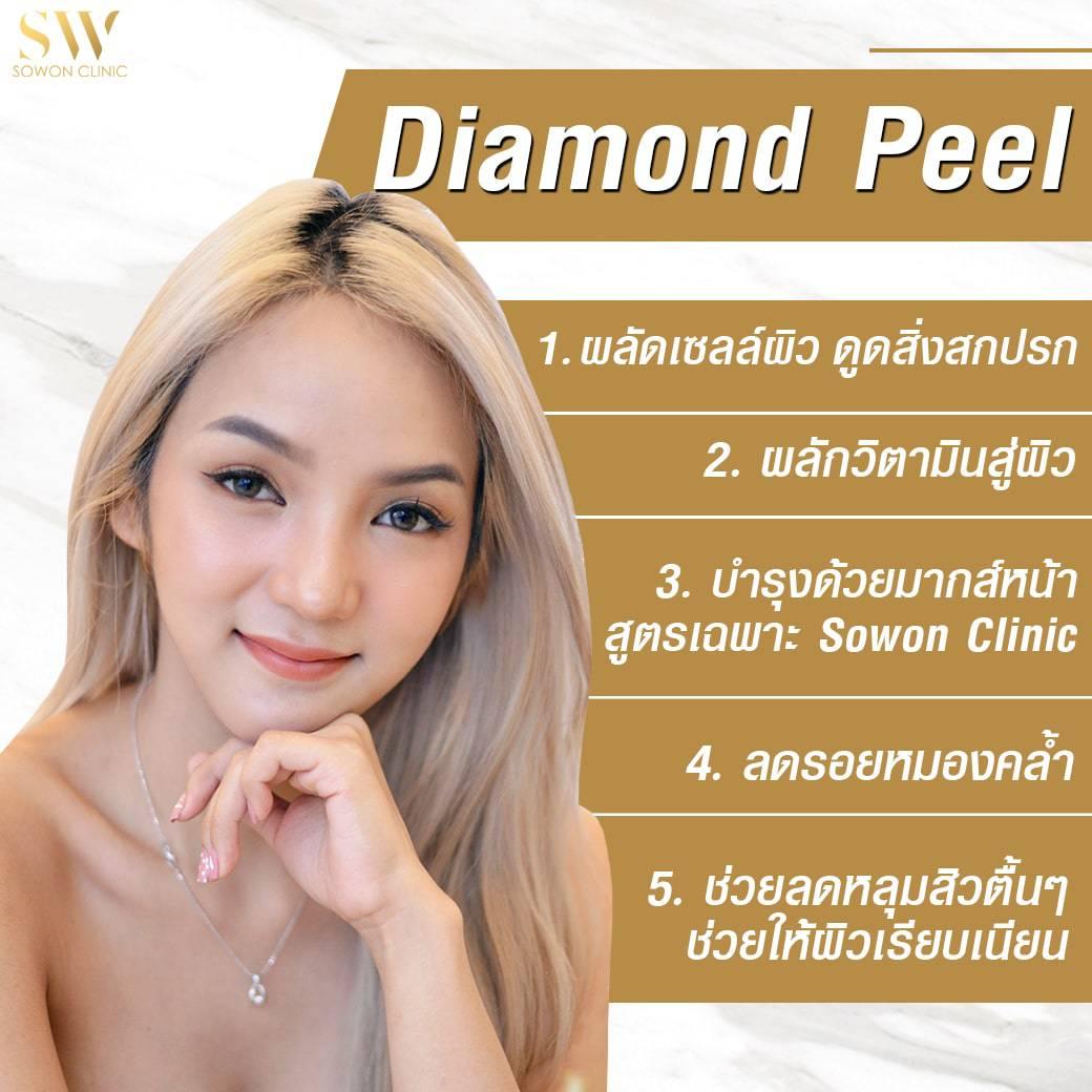 diamond peel เรื่องผลัดเซลล์ผิว