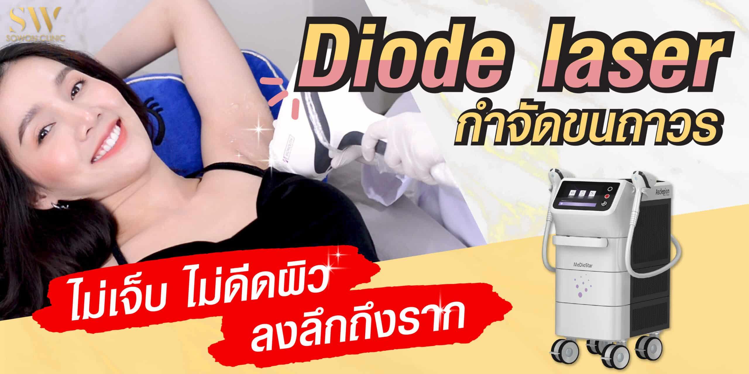 diaode Laser