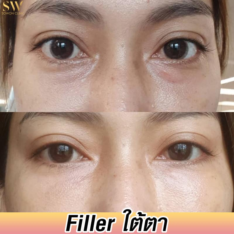 review filler sowon clinic 2021
